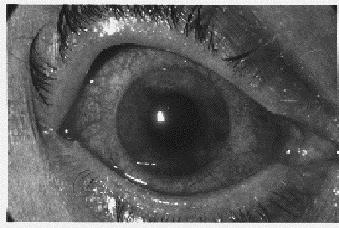 Malattie degli organi dei sensi patologia terapia occhio for Mal di testa da pressione alta